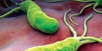 Lợi ích bất ngờ của vi khuẩn dạ dày H.Pylori