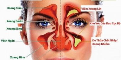 Ðông y chữa viêm mũi mạn tính